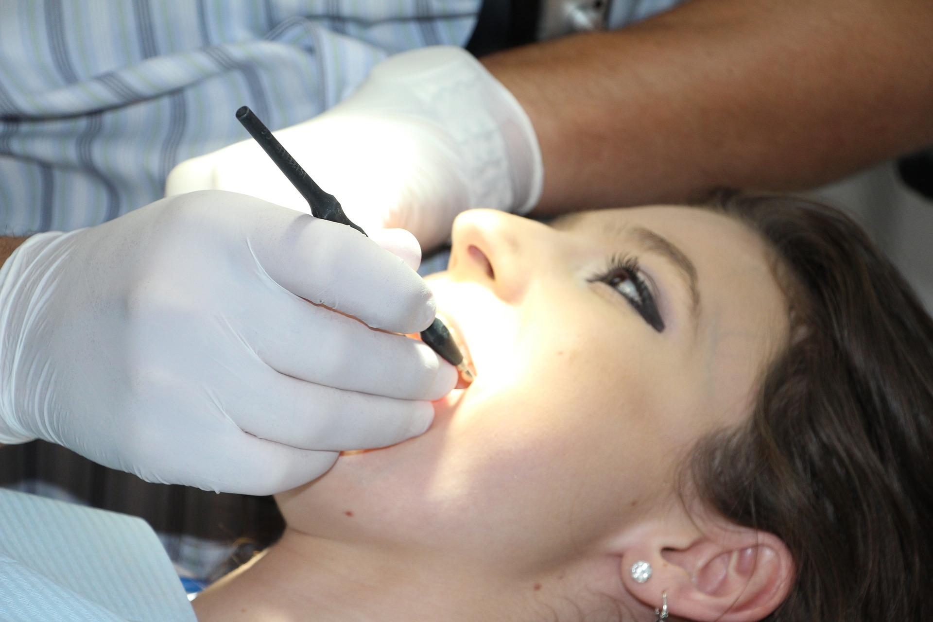cum putem preveni aparitia cariilor, carie dentara, stomatolog Cluj, clinica stomatologica